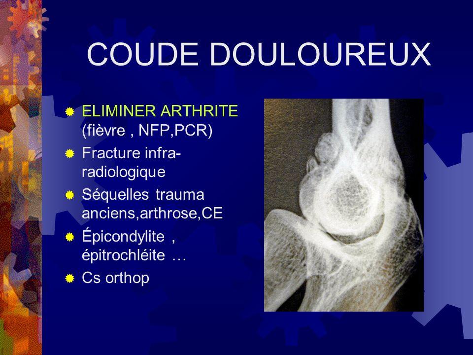 COUDE DOULOUREUX ELIMINER ARTHRITE (fièvre, NFP,PCR) Fracture infra- radiologique Séquelles trauma anciens,arthrose,CE Épicondylite, épitrochléite … C