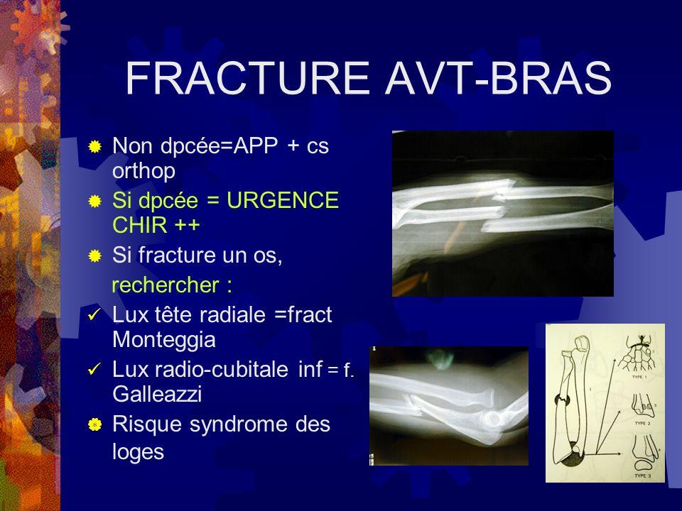 FRACTURE AVT-BRAS Non dpcée=APP + cs orthop Si dpcée = URGENCE CHIR ++ Si fracture un os, rechercher : Lux tête radiale =fract Monteggia Lux radio-cub