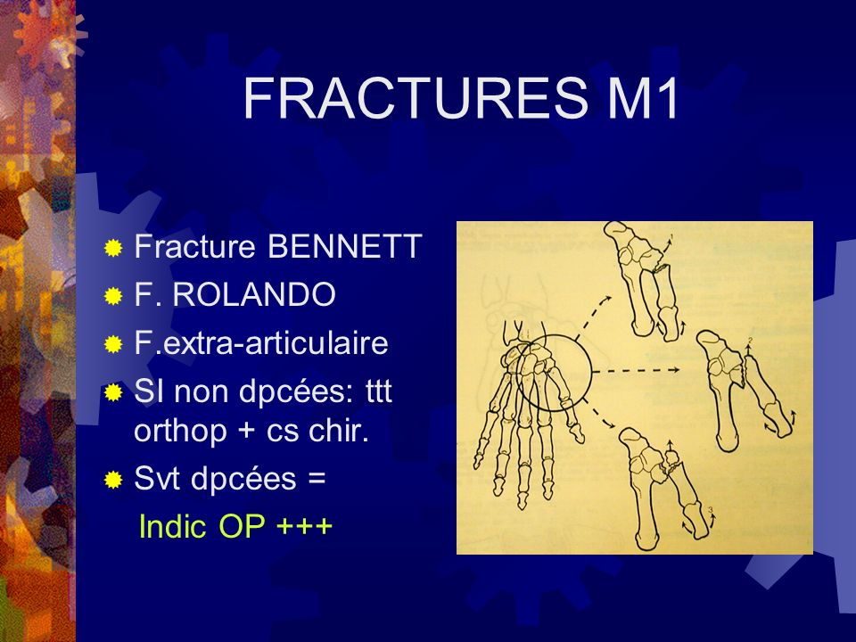 FRACTURES M1 Fracture BENNETT F. ROLANDO F.extra-articulaire SI non dpcées: ttt orthop + cs chir. Svt dpcées = Indic OP +++