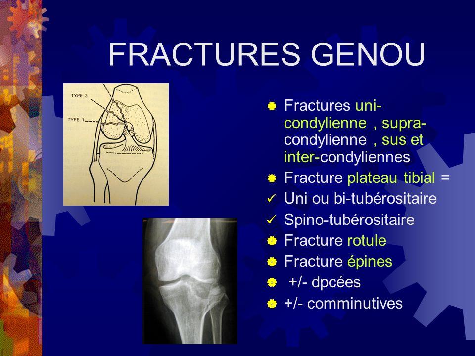 FRACTURES GENOU Fractures uni- condylienne, supra- condylienne, sus et inter-condyliennes Fracture plateau tibial = Uni ou bi-tubérositaire Spino-tubé
