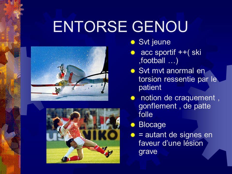 ENTORSE GENOU Svt jeune acc sportif ++( ski,football …) Svt mvt anormal en torsion ressentie par le patient notion de craquement, gonflement, de patte