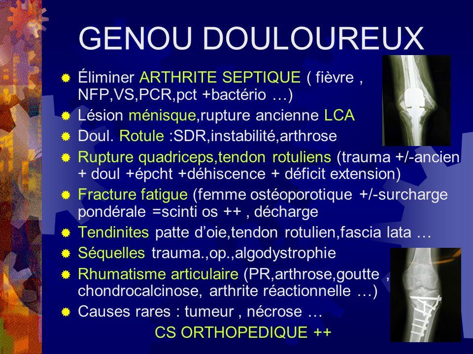 GENOU DOULOUREUX Éliminer ARTHRITE SEPTIQUE ( fièvre, NFP,VS,PCR,pct +bactério …) Lésion ménisque,rupture ancienne LCA Doul. Rotule :SDR,instabilité,a