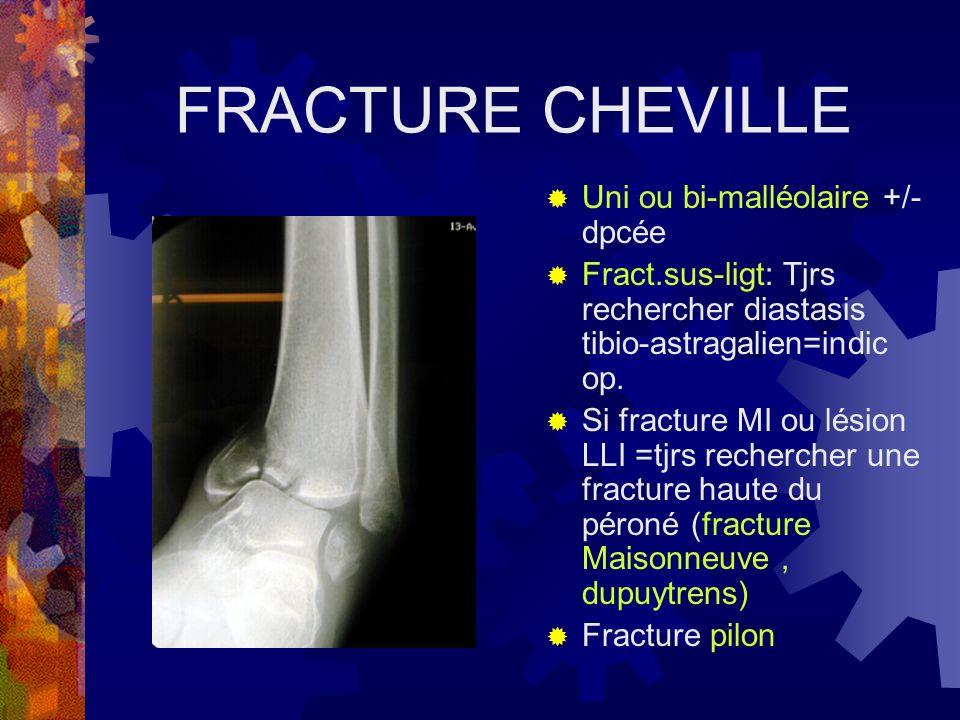 FRACTURE CHEVILLE Uni ou bi-malléolaire +/- dpcée Fract.sus-ligt: Tjrs rechercher diastasis tibio-astragalien=indic op. Si fracture MI ou lésion LLI =