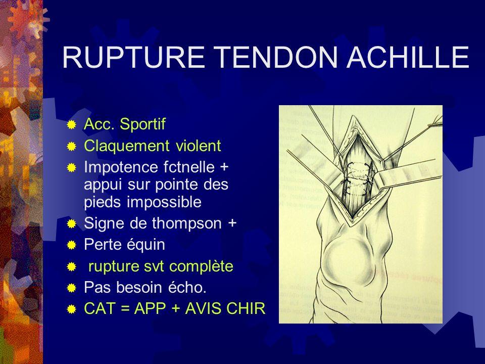 RUPTURE TENDON ACHILLE Acc. Sportif Claquement violent Impotence fctnelle + appui sur pointe des pieds impossible Signe de thompson + Perte équin rupt