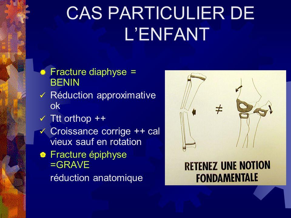 CAS PARTICULIER DE LENFANT Fracture diaphyse = BENIN Réduction approximative ok Ttt orthop ++ Croissance corrige ++ cal vieux sauf en rotation Fractur