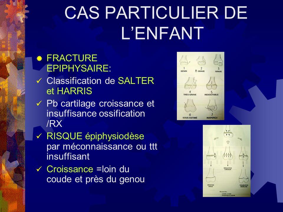 CAS PARTICULIER DE LENFANT FRACTURE EPIPHYSAIRE: Classification de SALTER et HARRIS Pb cartilage croissance et insuffisance ossification /RX RISQUE ép