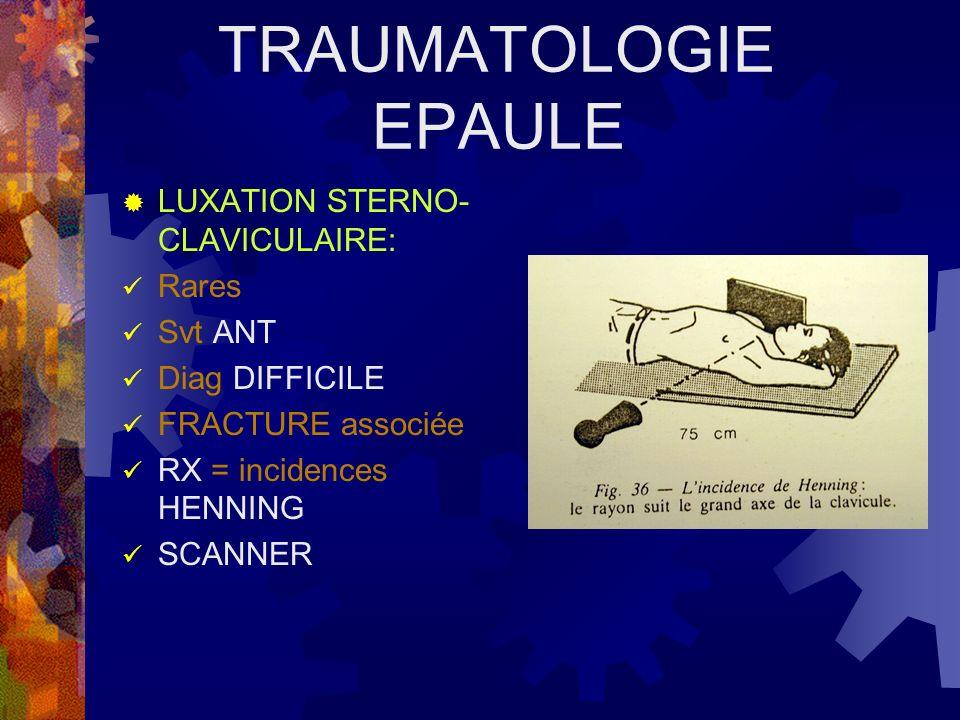 LUXATION STERNO- CLAVICULAIRE: TTT ORTHOPEDIQUE: GILET= QQ sem REDUCTION = Récidive ++ CHIRURGIE : Lux POST ++ Risque ++ AVIS CHIR +++