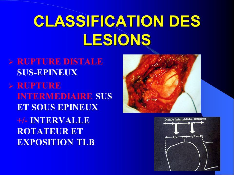 CLASSIFICATION DES LESIONS RUPTURE DISTALE SUS-EPINEUX RUPTURE INTERMEDIAIRE SUS ET SOUS EPINEUX +/- INTERVALLE ROTATEUR ET EXPOSITION TLB