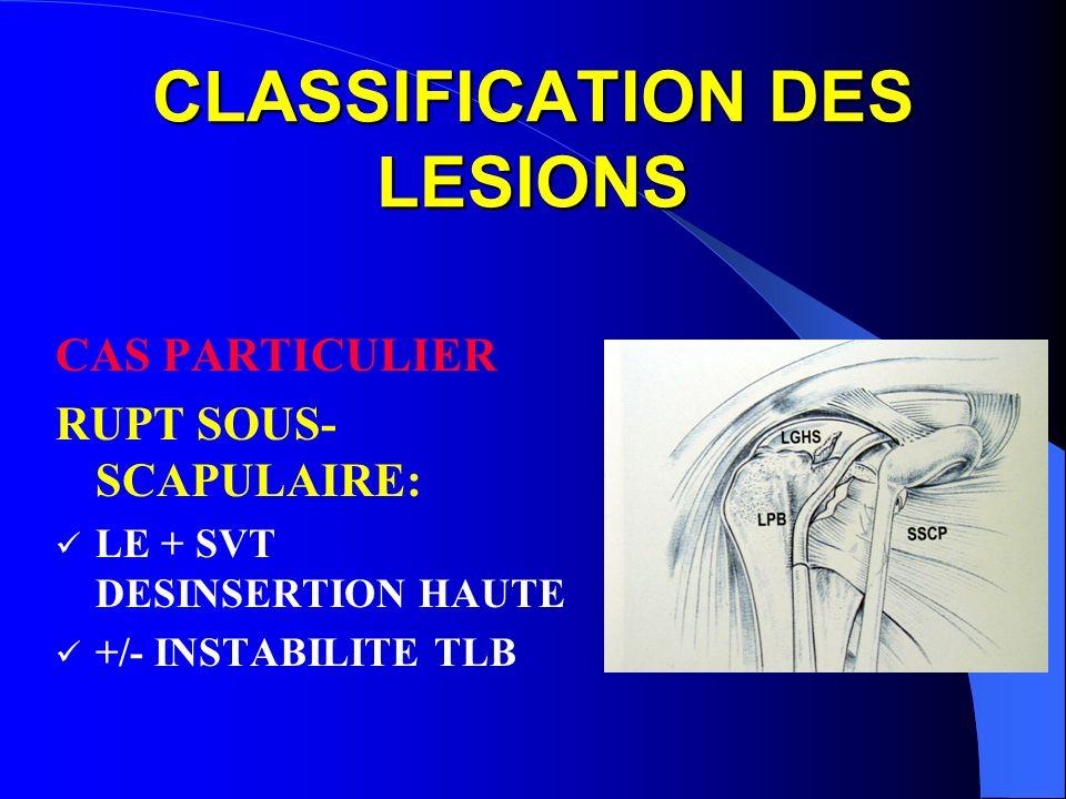 CLASSIFICATION DES LESIONS CAS PARTICULIER RUPT SOUS- SCAPULAIRE: LE + SVT DESINSERTION HAUTE +/- INSTABILITE TLB