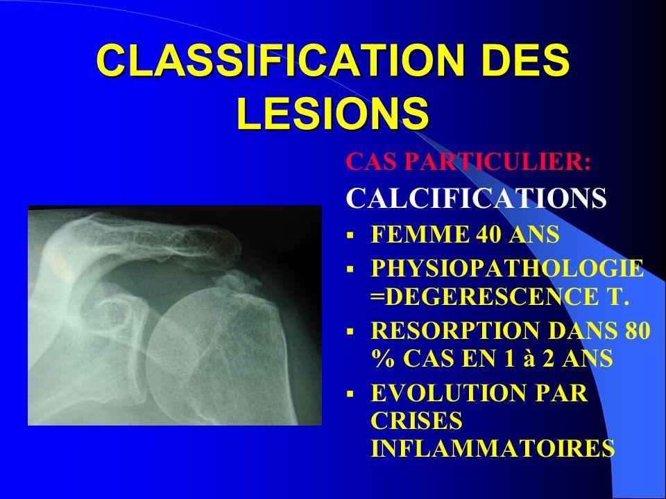 CLASSIFICATION DES LESIONS CAS PARTICULIER: CALCIFICATIONS FEMME 40 ANS PHYSIOPATHOLOGIE =DEGERESCENCE T. RESORPTION DANS 80 % CAS EN 1 à 2 ANS EVOLUT