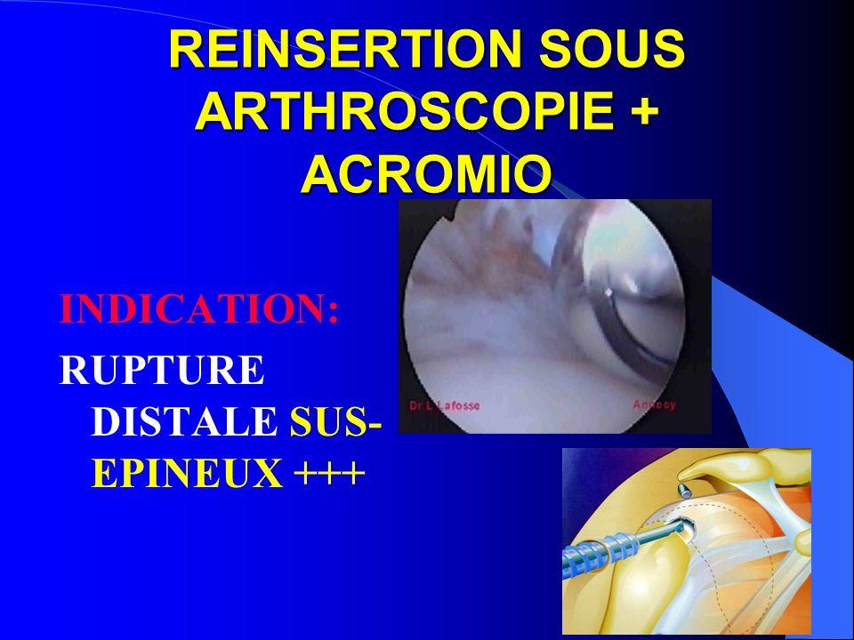 REINSERTION SOUS ARTHROSCOPIE + ACROMIO INDICATION: RUPTURE DISTALE SUS- EPINEUX +++