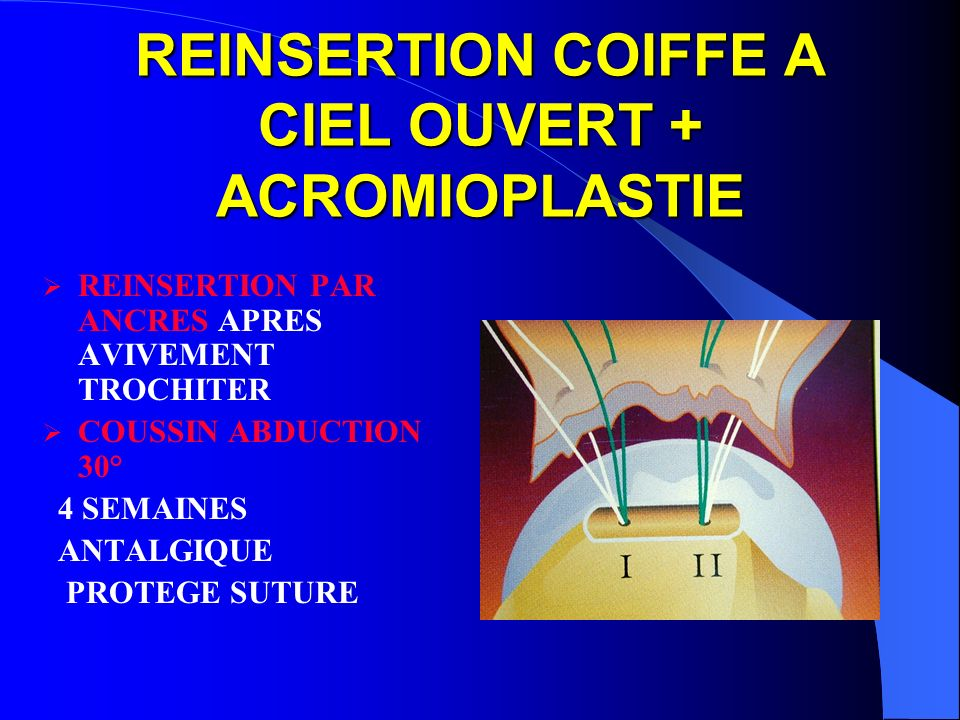 REINSERTION COIFFE A CIEL OUVERT + ACROMIOPLASTIE REINSERTION PAR ANCRES APRES AVIVEMENT TROCHITER COUSSIN ABDUCTION 30° 4 SEMAINES ANTALGIQUE PROTEGE