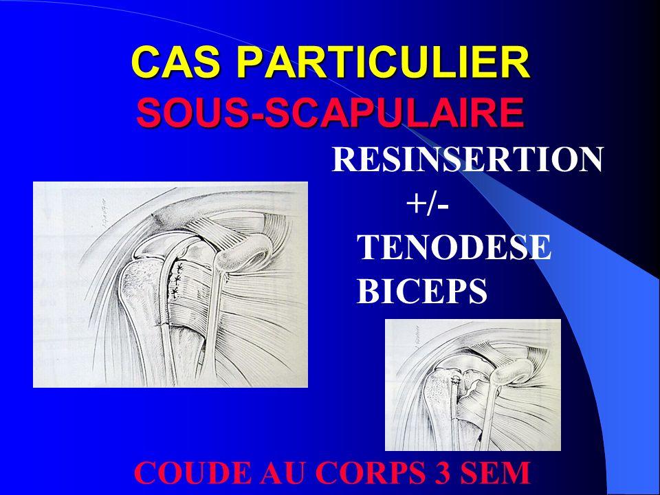 CAS PARTICULIER SOUS-SCAPULAIRE RESINSERTION +/- TENODESE BICEPS COUDE AU CORPS 3 SEM