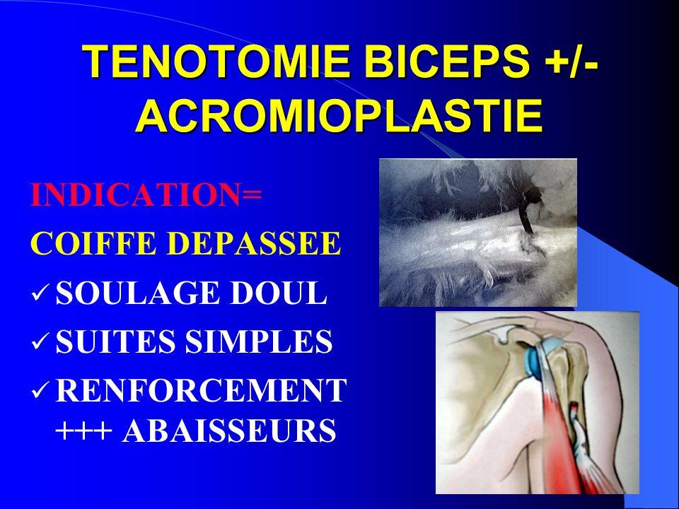 TENOTOMIE BICEPS +/- ACROMIOPLASTIE INDICATION= COIFFE DEPASSEE SOULAGE DOUL SUITES SIMPLES RENFORCEMENT +++ ABAISSEURS