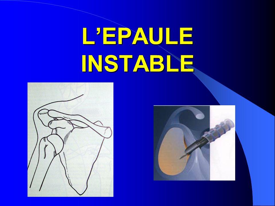 LEPAULE INSTABLE