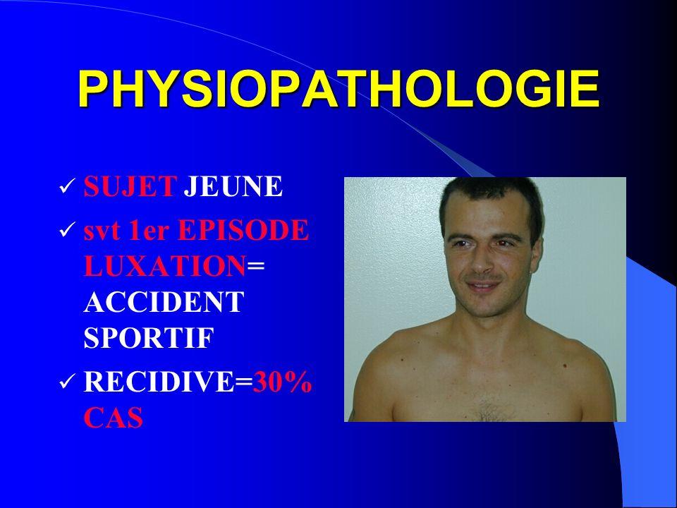PHYSIOPATHOLOGIE SUJET JEUNE svt 1er EPISODE LUXATION= ACCIDENT SPORTIF RECIDIVE=30% CAS