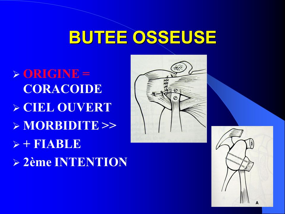 BUTEE OSSEUSE ORIGINE = CORACOIDE CIEL OUVERT MORBIDITE >> + FIABLE 2ème INTENTION