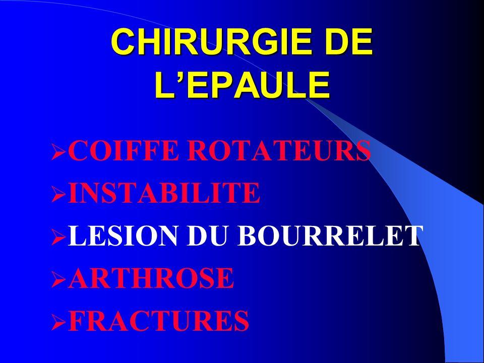 CHIRURGIE DE LEPAULE COIFFE ROTATEURS INSTABILITE LESION DU BOURRELET ARTHROSE FRACTURES