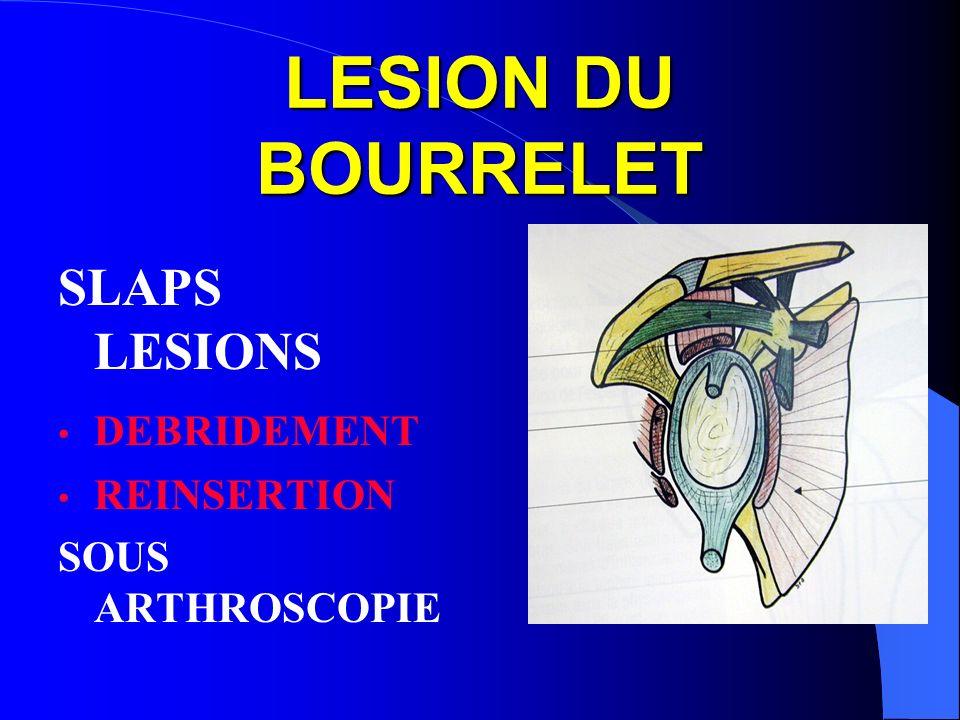 LESION DU BOURRELET SLAPS LESIONS DEBRIDEMENT REINSERTION SOUS ARTHROSCOPIE