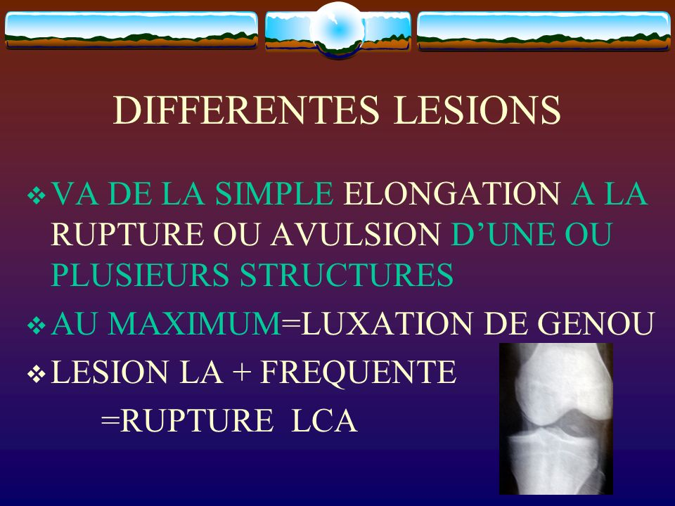 DIFFERENTES LESIONS VA DE LA SIMPLE ELONGATION A LA RUPTURE OU AVULSION DUNE OU PLUSIEURS STRUCTURES AU MAXIMUM=LUXATION DE GENOU LESION LA + FREQUENT