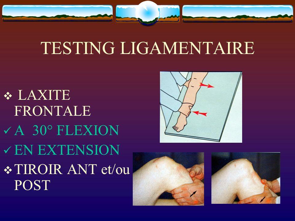 TESTING LIGAMENTAIRE LAXITE FRONTALE A 30° FLEXION EN EXTENSION TIROIR ANT et/ou POST