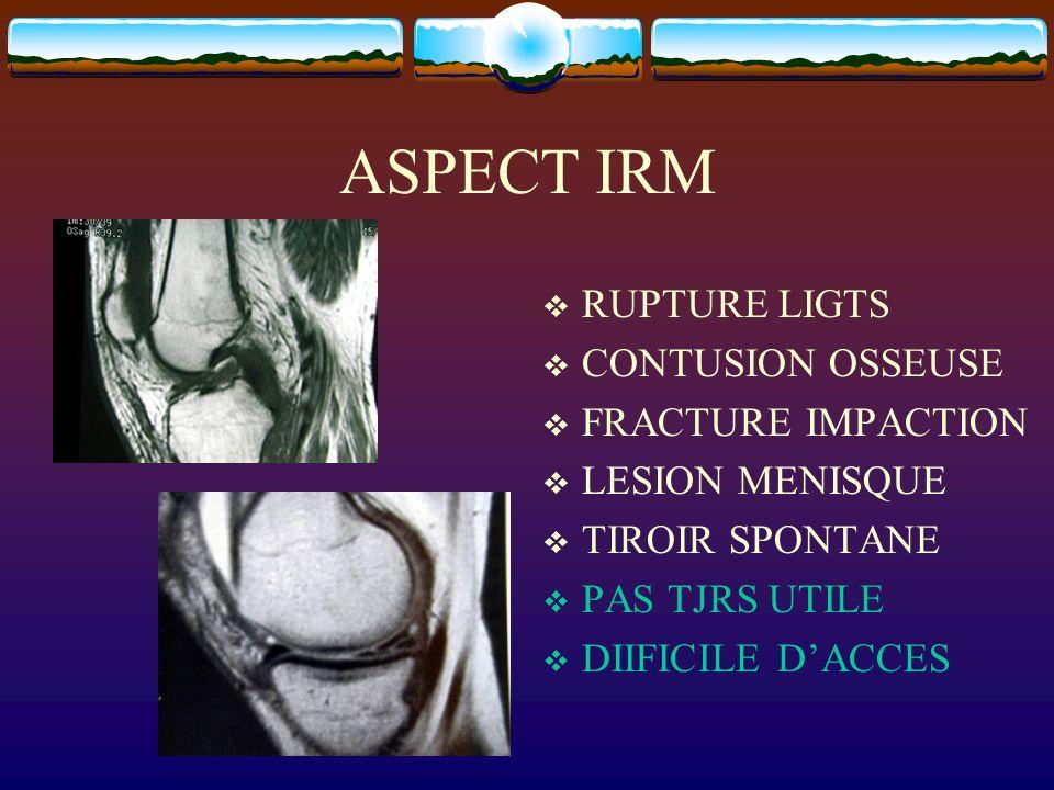 ASPECT IRM RUPTURE LIGTS CONTUSION OSSEUSE FRACTURE IMPACTION LESION MENISQUE TIROIR SPONTANE PAS TJRS UTILE DIIFICILE DACCES