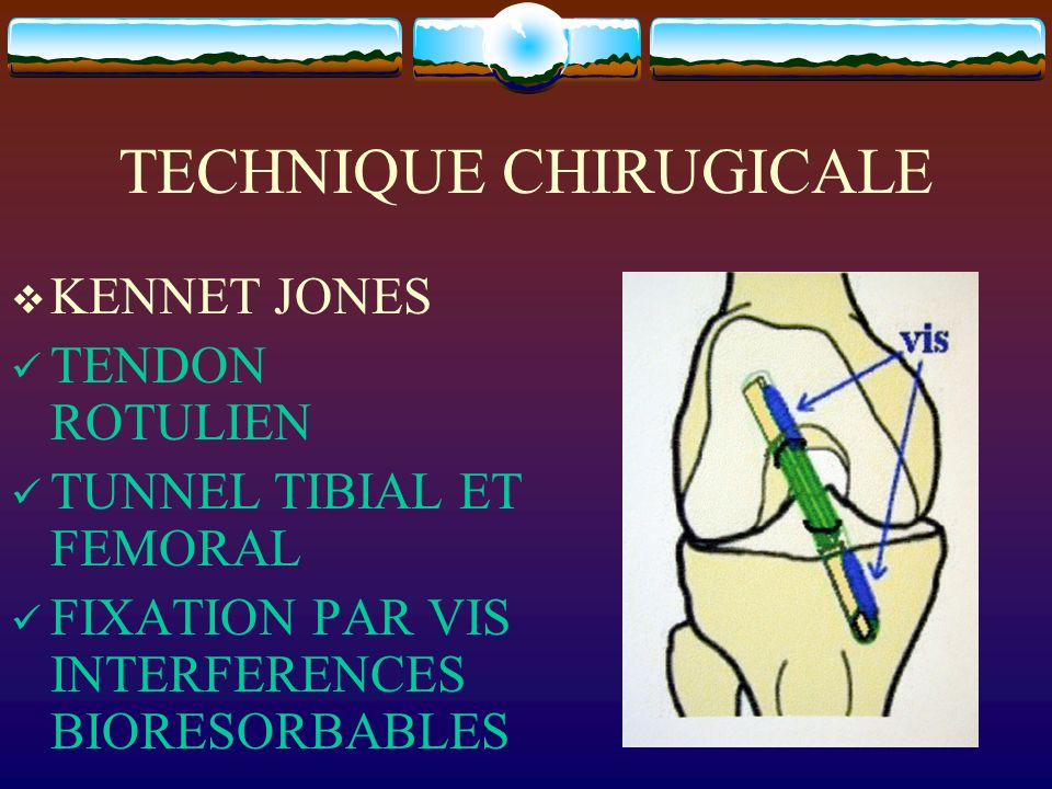 TECHNIQUE CHIRUGICALE KENNET JONES TENDON ROTULIEN TUNNEL TIBIAL ET FEMORAL FIXATION PAR VIS INTERFERENCES BIORESORBABLES