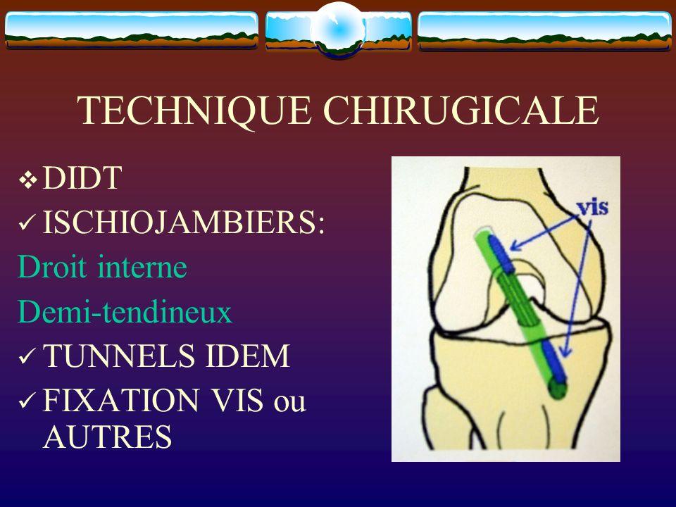 TECHNIQUE CHIRUGICALE DIDT ISCHIOJAMBIERS: Droit interne Demi-tendineux TUNNELS IDEM FIXATION VIS ou AUTRES