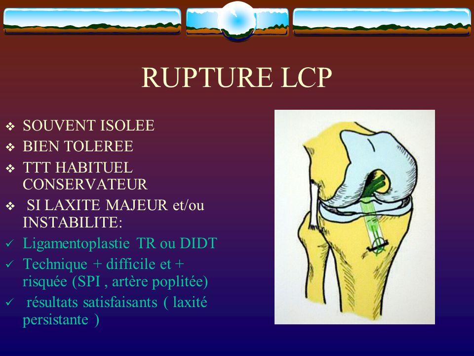 RUPTURE LCP SOUVENT ISOLEE BIEN TOLEREE TTT HABITUEL CONSERVATEUR SI LAXITE MAJEUR et/ou INSTABILITE: Ligamentoplastie TR ou DIDT Technique + difficil