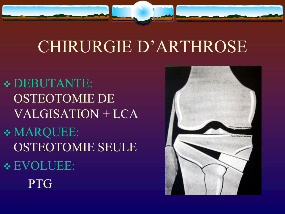 CHIRURGIE DARTHROSE DEBUTANTE: OSTEOTOMIE DE VALGISATION + LCA MARQUEE: OSTEOTOMIE SEULE EVOLUEE: PTG