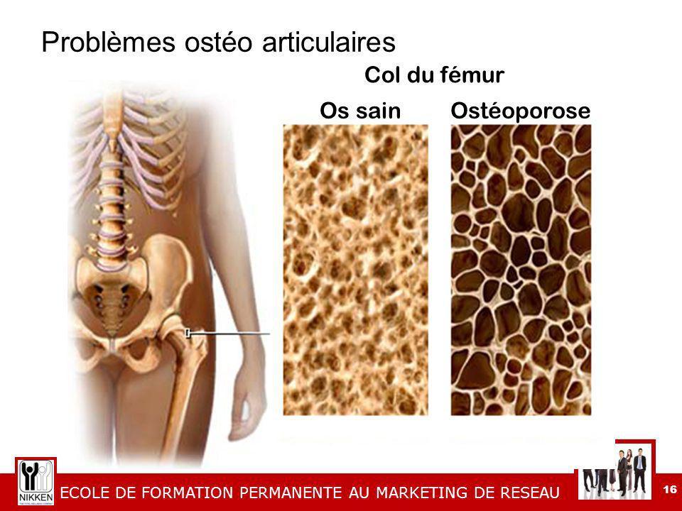 ECOLE DE FORMATION PERMANENTE AU MARKETING DE RESEAU 16 Problèmes ostéo articulaires Os sainOstéoporose Col du fémur