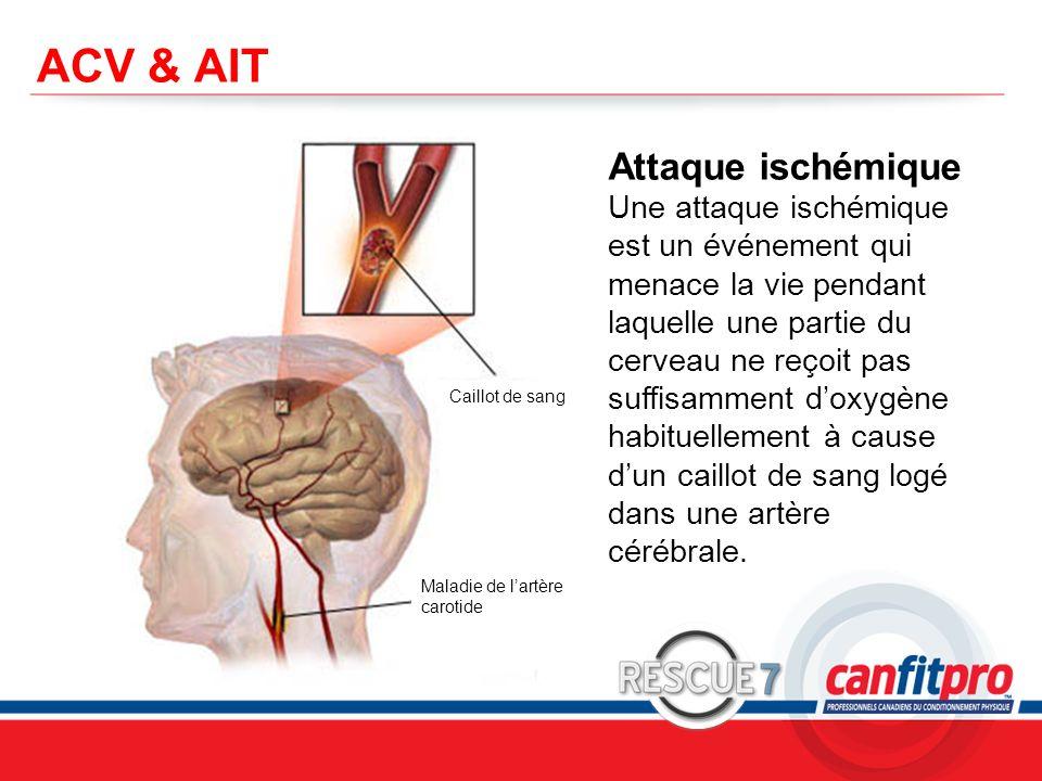 CPR Course Level 1 ACV & AIT Attaque ischémique Une attaque ischémique est un événement qui menace la vie pendant laquelle une partie du cerveau ne re