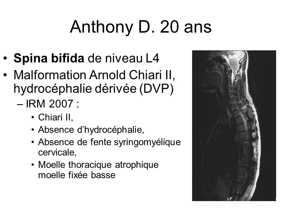 Anthony D. 20 ans Spina bifida de niveau L4 Malformation Arnold Chiari II, hydrocéphalie dérivée (DVP) –IRM 2007 : Chiari II, Absence dhydrocéphalie,