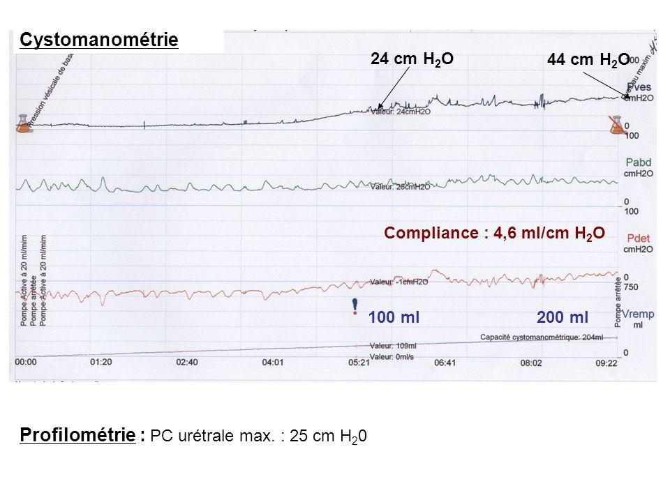 44 cm H 2 O 24 cm H 2 O 100 ml200 ml Profilométrie : PC urétrale max. : 25 cm H 2 0 Cystomanométrie Compliance : 4,6 ml/cm H 2 O
