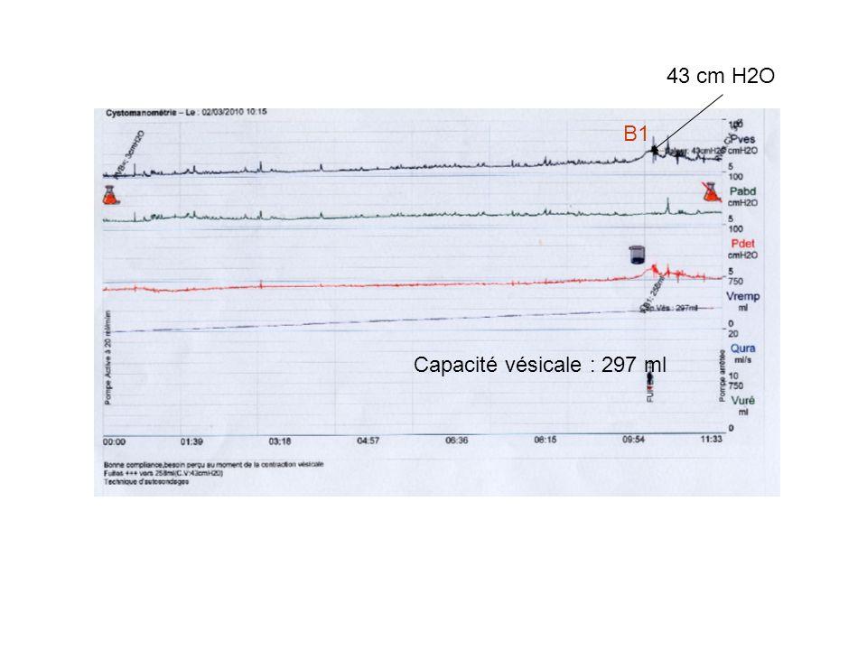 Capacité vésicale : 297 ml 43 cm H2O B1