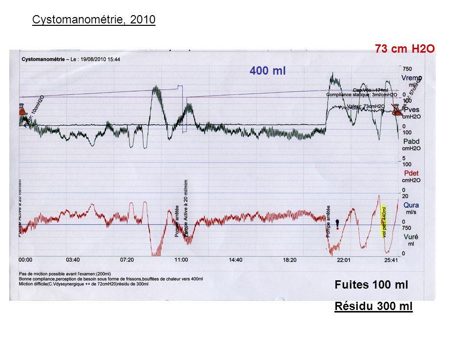 Cystomanométrie, 2010 400 ml 73 cm H2O Fuites 100 ml Résidu 300 ml
