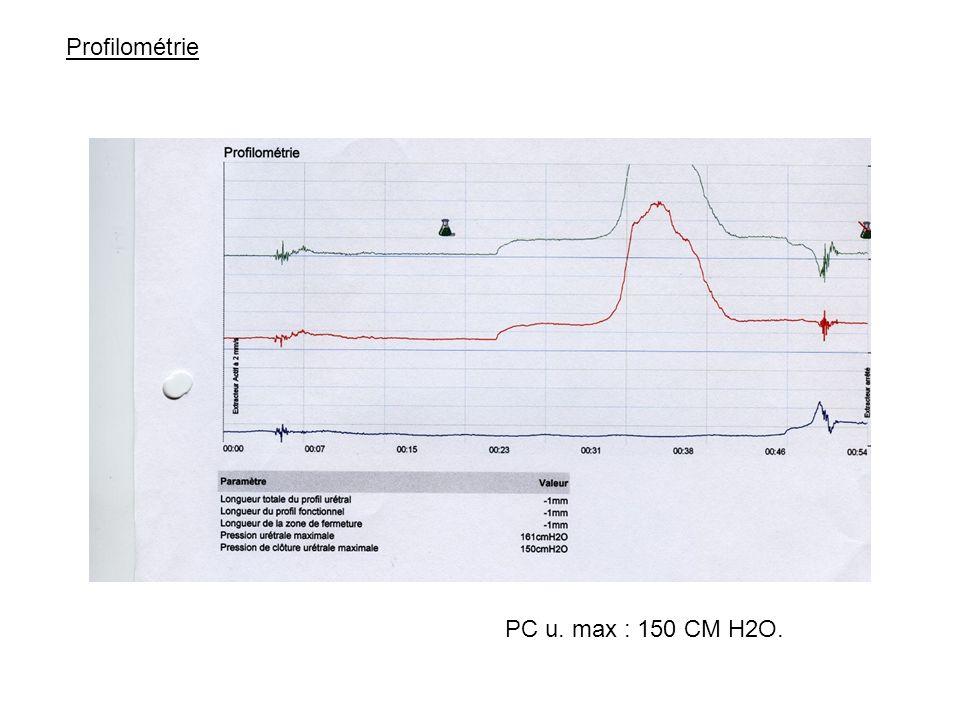 Profilométrie PC u. max : 150 CM H2O.
