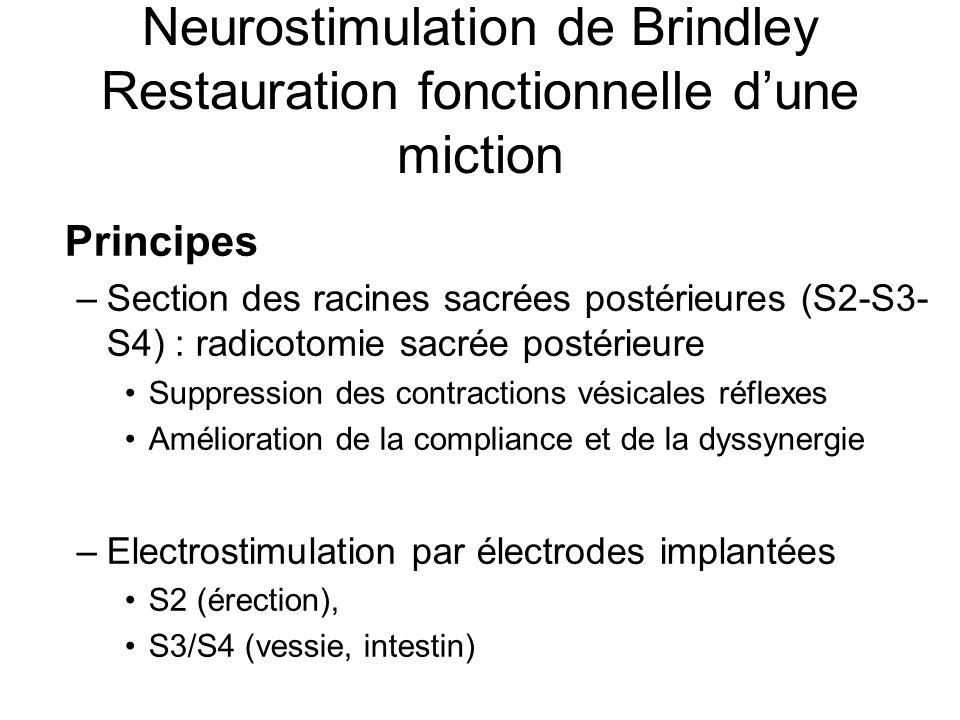Neurostimulation de Brindley Restauration fonctionnelle dune miction Principes –Section des racines sacrées postérieures (S2-S3- S4) : radicotomie sac