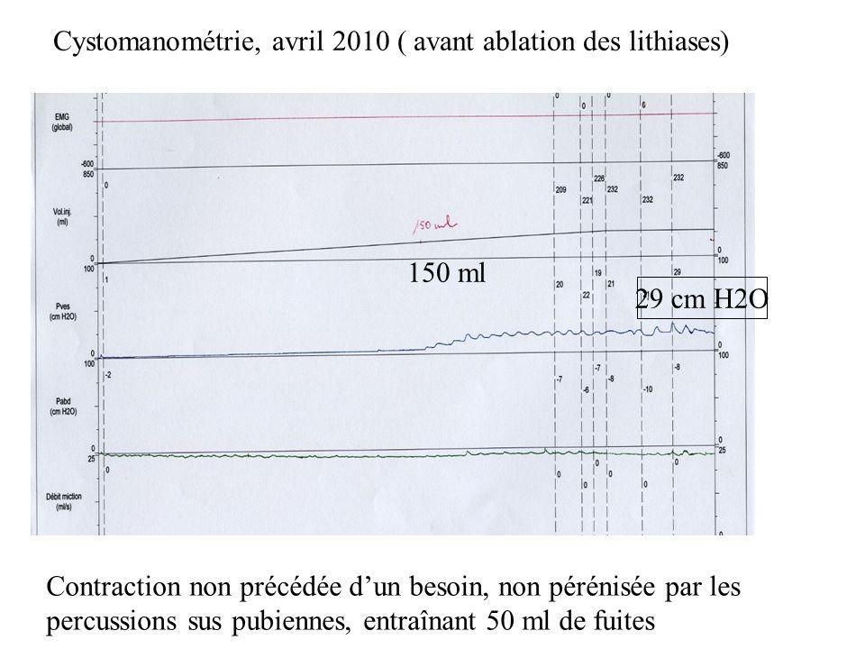 Cystomanométrie, avril 2010 ( avant ablation des lithiases) 150 ml 29 cm H2O Contraction non précédée dun besoin, non pérénisée par les percussions su