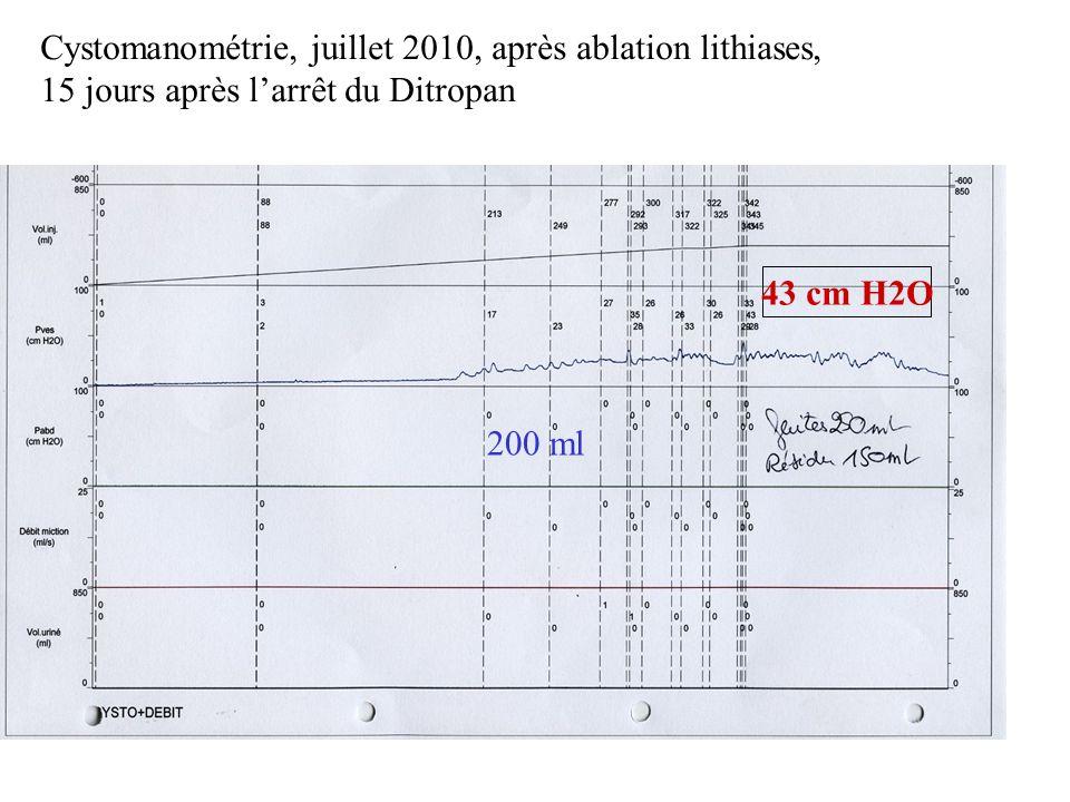 Cystomanométrie, juillet 2010, après ablation lithiases, 15 jours après larrêt du Ditropan 200 ml 43 cm H2O