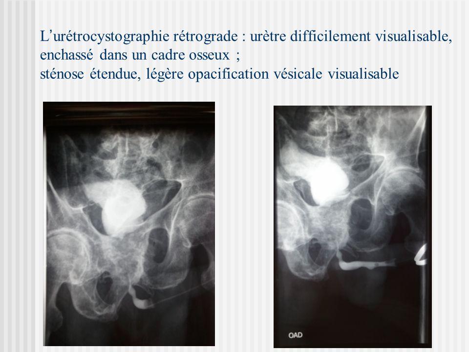 L urétrocystographie rétrograde : urètre difficilement visualisable, enchassé dans un cadre osseux ; sténose étendue, légère opacification vésicale vi