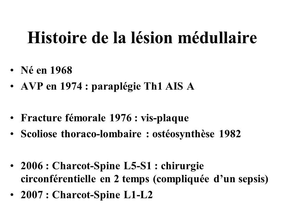Histoire de la lésion médullaire Né en 1968 AVP en 1974 : paraplégie Th1 AIS A Fracture fémorale 1976 : vis-plaque Scoliose thoraco-lombaire : ostéosy