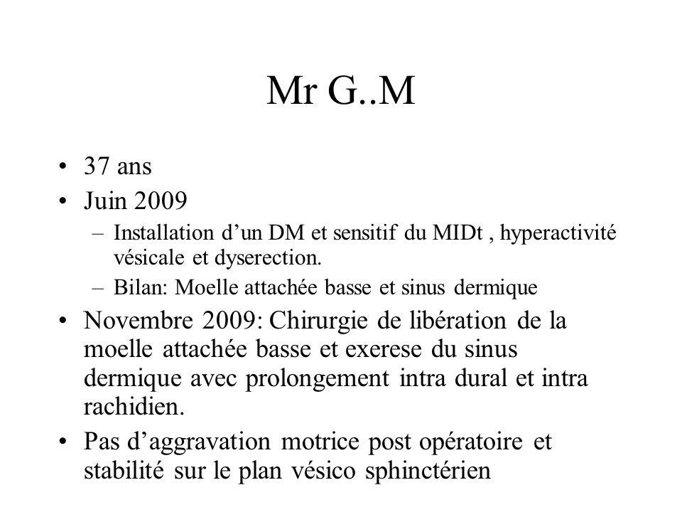 Mr G..M 37 ans Juin 2009 –Installation dun DM et sensitif du MIDt, hyperactivité vésicale et dyserection.