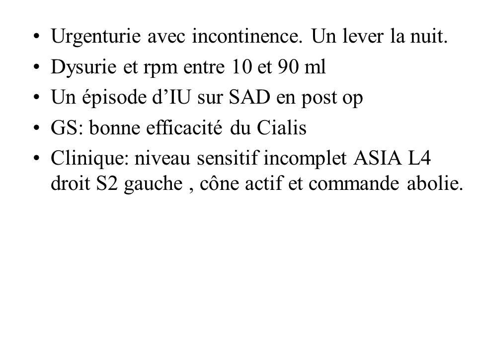 22/04/2011 Sous Ditropan 15 mg/j Omexel 1/j 20 ml/mn CV à 40 cm H2O : 95 ml Compliance 13.6 ml/cmH2O Fuite: 0 PUM: 167 cm H2O