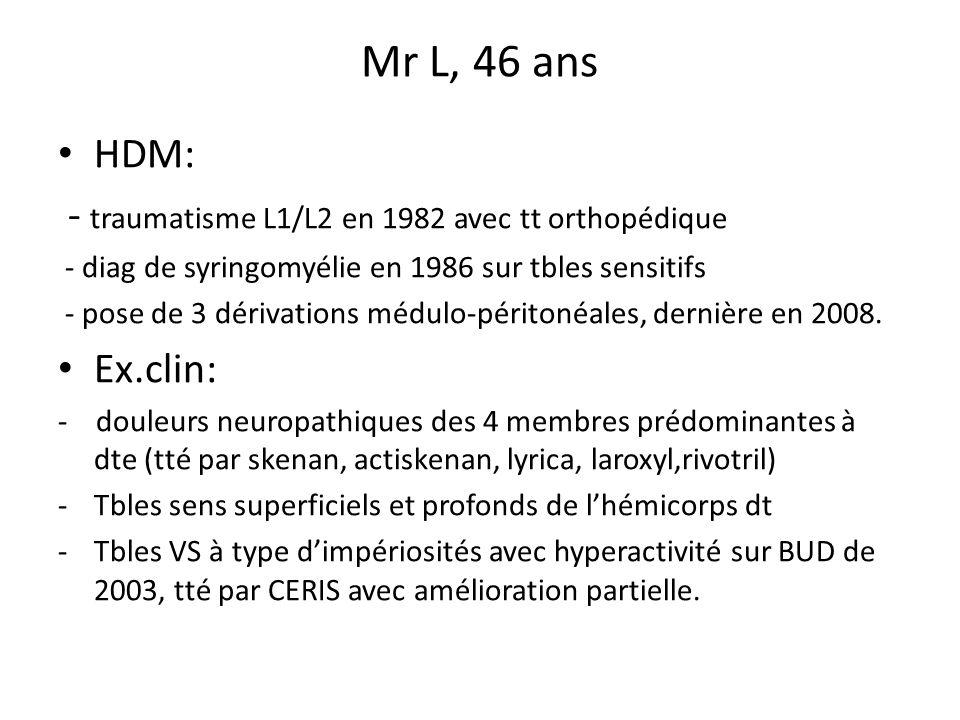 Mr L, 46 ans HDM: - traumatisme L1/L2 en 1982 avec tt orthopédique - diag de syringomyélie en 1986 sur tbles sensitifs - pose de 3 dérivations médulo-