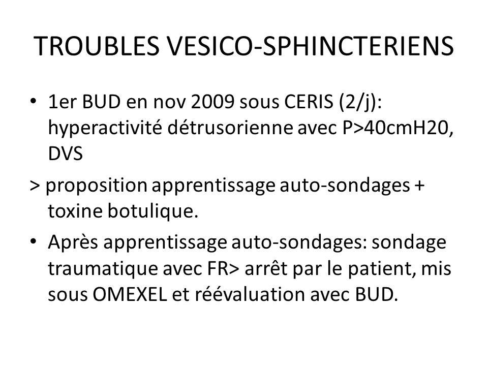 TROUBLES VESICO-SPHINCTERIENS 1er BUD en nov 2009 sous CERIS (2/j): hyperactivité détrusorienne avec P>40cmH20, DVS > proposition apprentissage auto-s