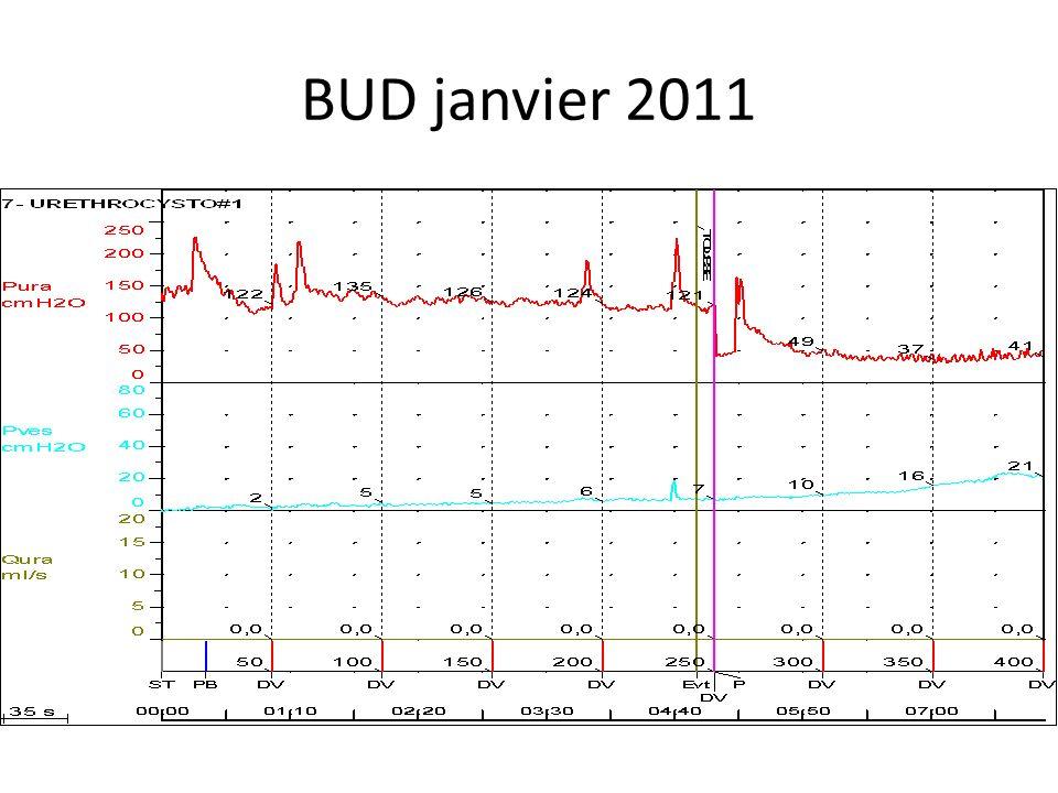Suivi urodynamique Bilan en janvier 2011: vessie hyperactive + hypertonie sphincter.compliance 33ml/cmH20 Proposition toxine botulique: mars 2011 Dysport 750SD.