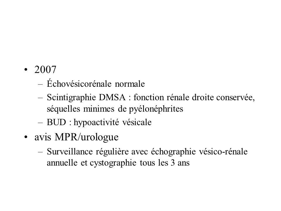 2007 –Échovésicorénale normale –Scintigraphie DMSA : fonction rénale droite conservée, séquelles minimes de pyélonéphrites –BUD : hypoactivité vésical