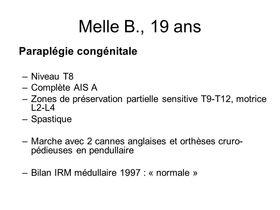 Melle B., 19 ans Paraplégie congénitale –Niveau T8 –Complète AIS A –Zones de préservation partielle sensitive T9-T12, motrice L2-L4 –Spastique –Marche