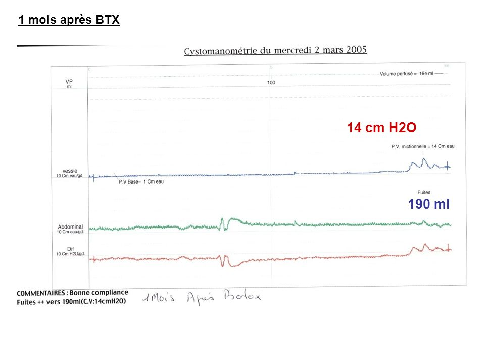 1 mois après BTX 190 ml 14 cm H2O